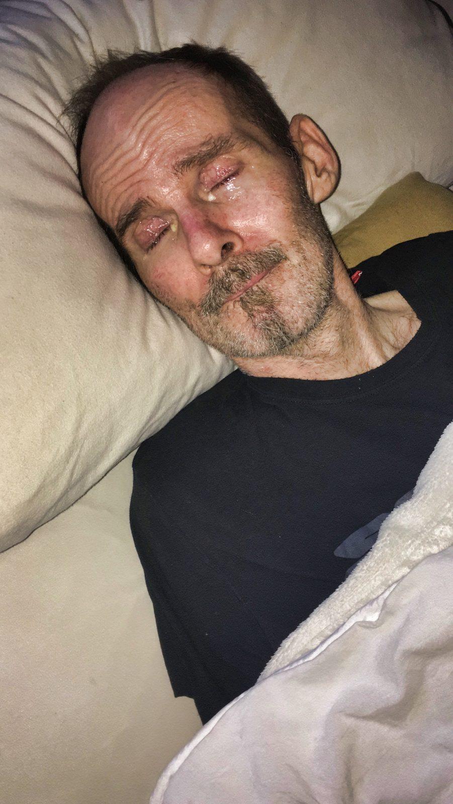 Stefan wieder in seinem Bett nach der OP.